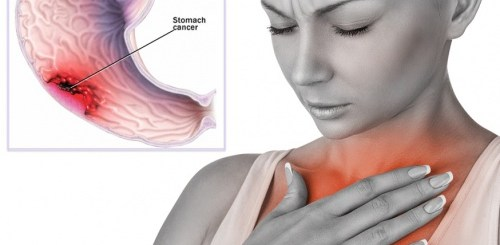 Is esophageal cancer somehow linked to acid reflux??
