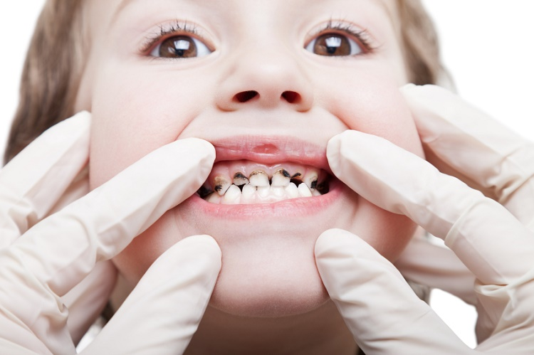 It is plaque that causes the cavity