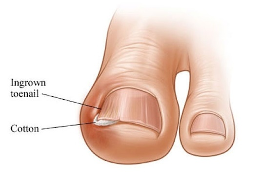 what are the causes and symptoms of ingrown toenails