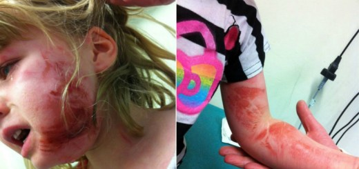 4-Year-old girl suffers horrific injuries during a flight, when the plane airbag explodes in her face