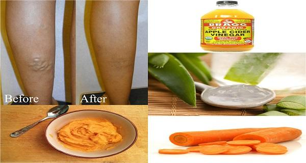 A very unique homemade recipe to get rid of varicose veins