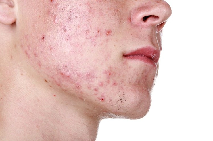 Fights acne and pimples