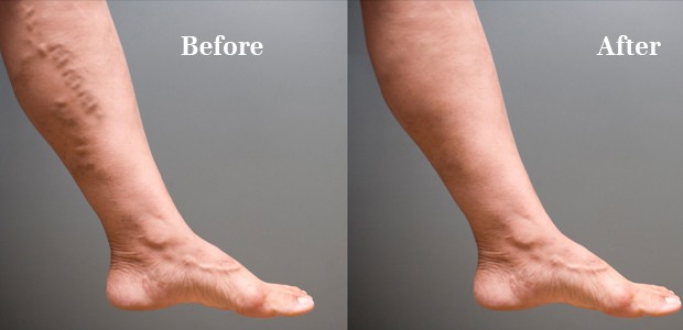 Some natural and simple methods to get rid of varicose veins