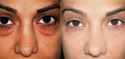 This girl used baking soda for dark circles and the results are astonishing