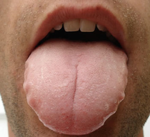 Teeth marks beside your tongue