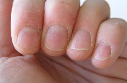 Treating chewing of nails with Stimulus control