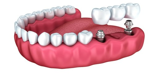Want to get dental implants? Here is all you need to know about them