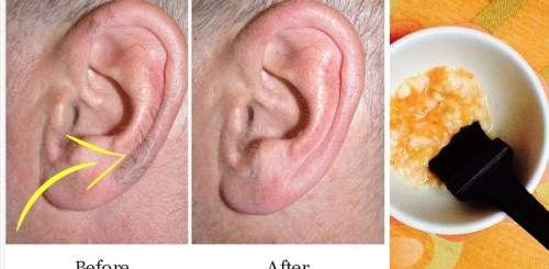 3 Ways to remove the ear hair in simple painless ways
