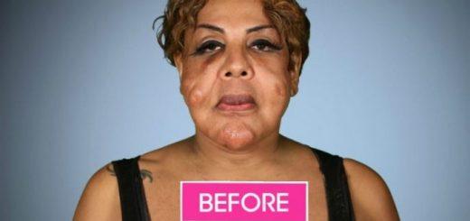 This woman had her face injected with something. Take a look at how she transformed