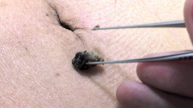 Dirt in the bellybutton
