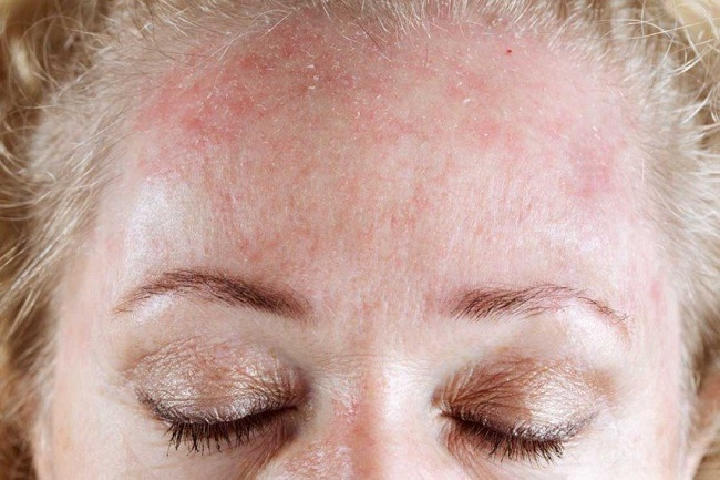 Skin becomes more dry and scaly
