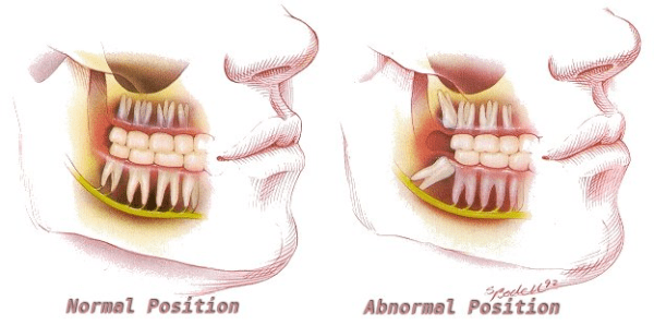 Facts about the Wisdom Teeth
