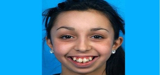 This girl got a life changing dental surgery. You won't believe how she looks now