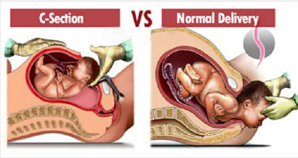 Some facts about Normal birth and C-section that women must keep in Mind