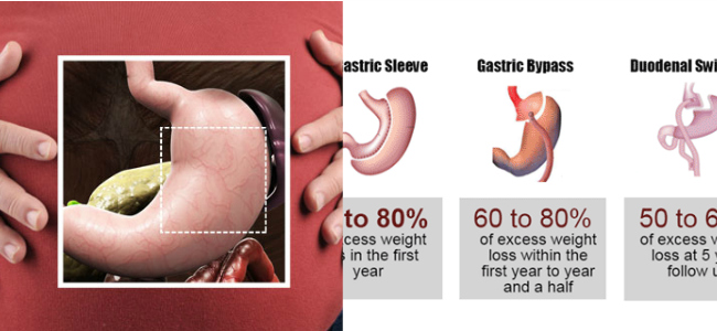 Want to lose weight via surgery? Check this comparison between different types of surgery first