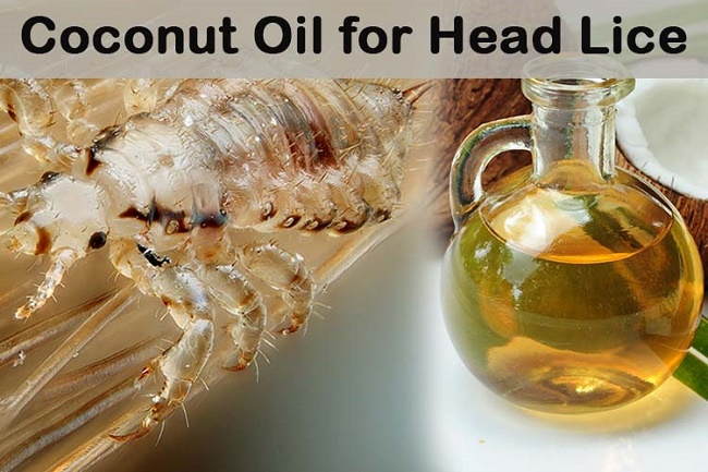 Coconut oil treats lice and other allergies