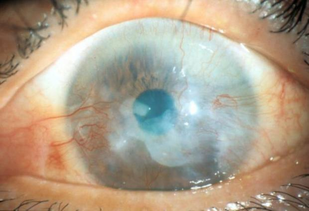 Stem cells that can reduce blindness