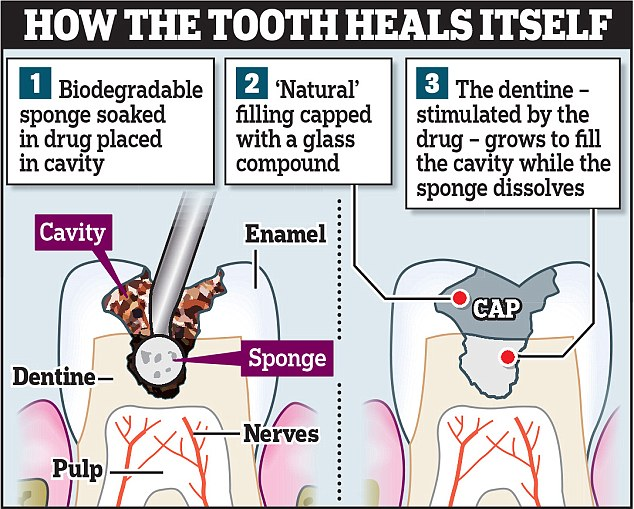 Teeth and their ability to regenerate