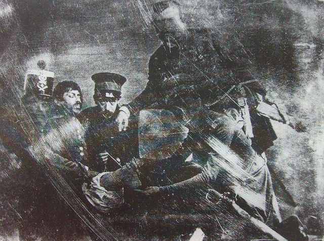 The first amputation photograph