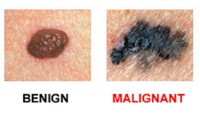 What is skin cancer or Melanoma