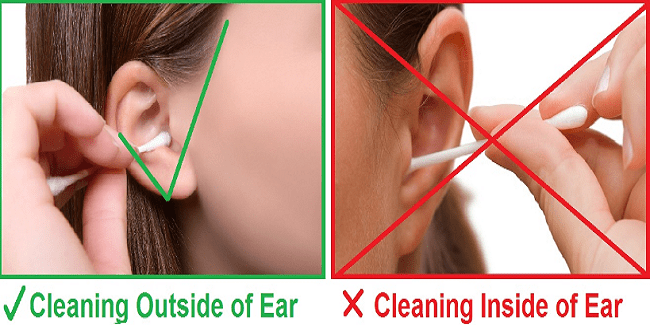 What you should do about ear wax