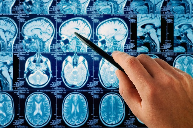 The risk of brain and heart Tumors
