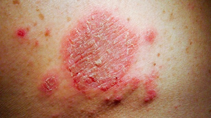 Itching and skin rash