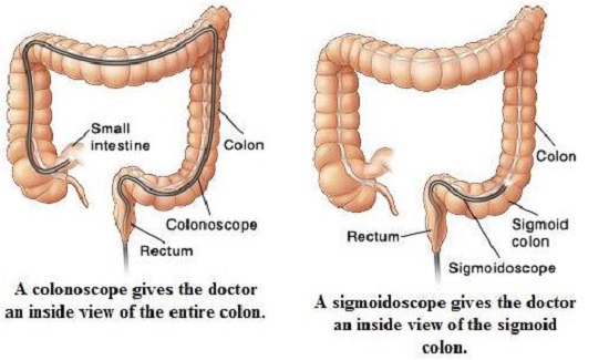 colonoscopy options