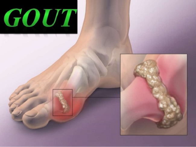 Gout can be dangerous in following conditions