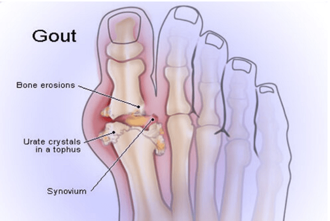 Gout is basically a joint inflammation