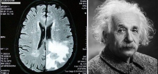 Scientists Say That Forgetfulness Is a Sign of Intelligence