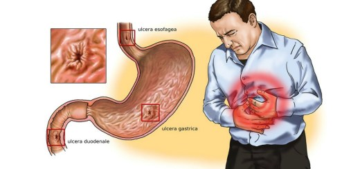 13 Silent Signs That You May Be Having Gastritis