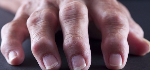 Main Reasons Why Your Fingers Are Swollen and When to Be Concerned