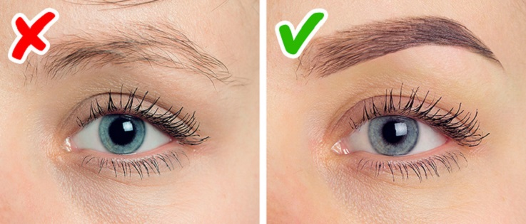 Thinning of eyebrows