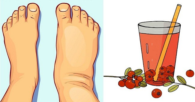 15 Foods and Drinks That Can Help You Get Rid Of Water Retention