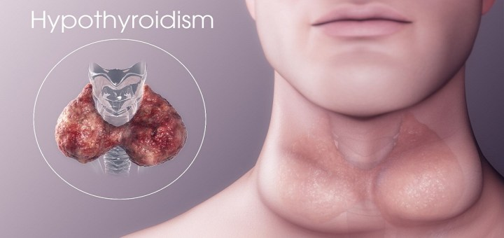 Remedies for Managing Hypothyroidism Naturally
