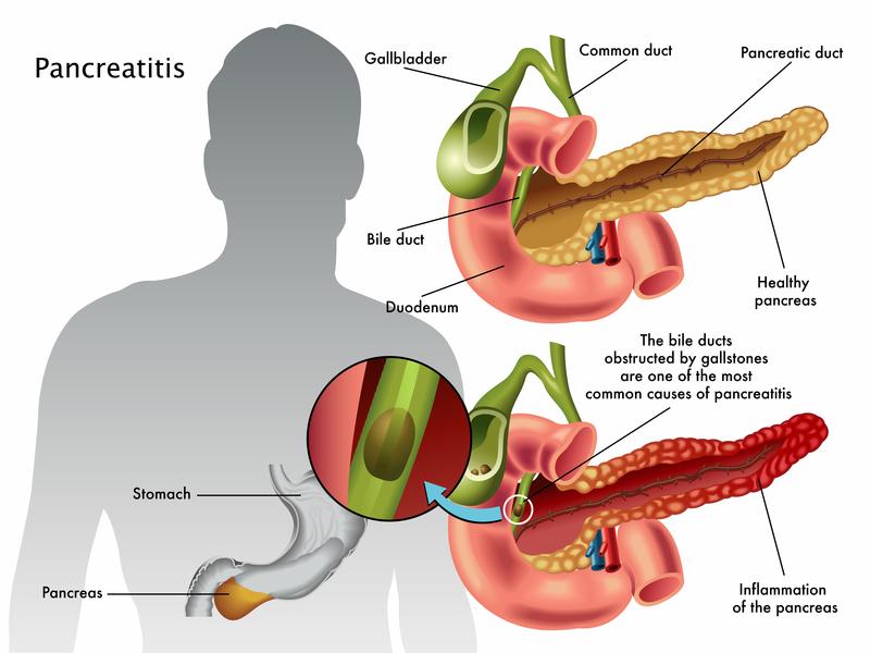 various conditions or factors than can lead to pancreatitis