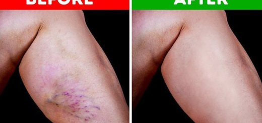 10 Ways You Can Get Rid of Varicose Veins on Your Own