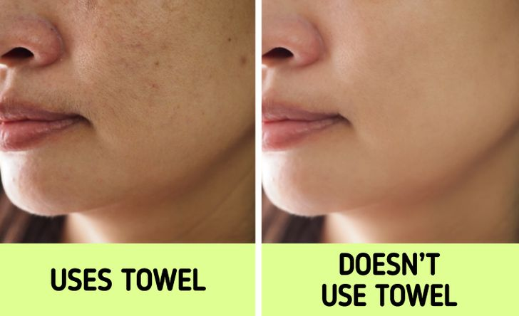 It can make your skin acne-prone