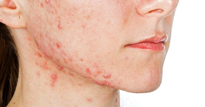 Pimples on chin and jawline