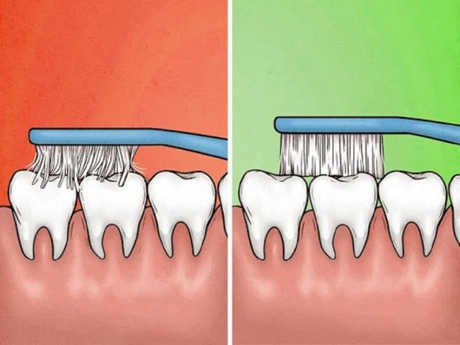 Brush your teeth with a soft-bristled toothbrush