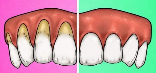 5 Signs That You Are Brushing Your Teeth Too Hard, And 5 Simple Fixes for It
