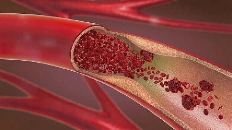 علامتان تشيران إلى ارتفاع مستوى الكوليسترول في الدم