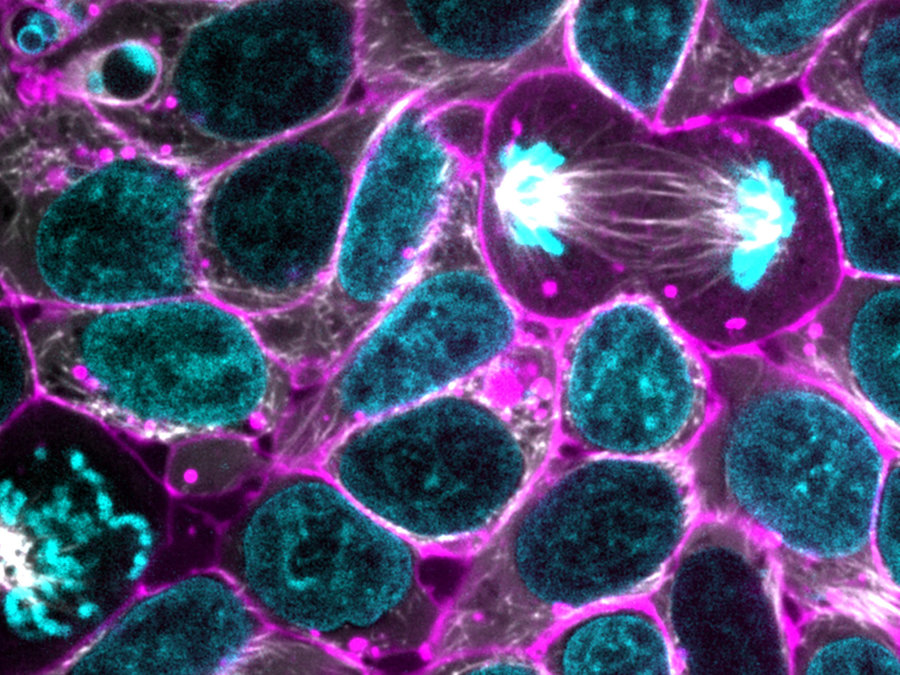 New Breakthrough, Now Cells Can Be Programmed to Fight Disease