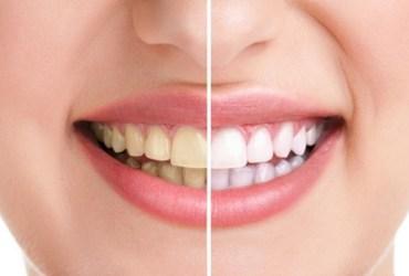 Methods of teeth whitening