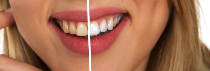 Remove Tartar From Your Teeth With These Amazing Mixture