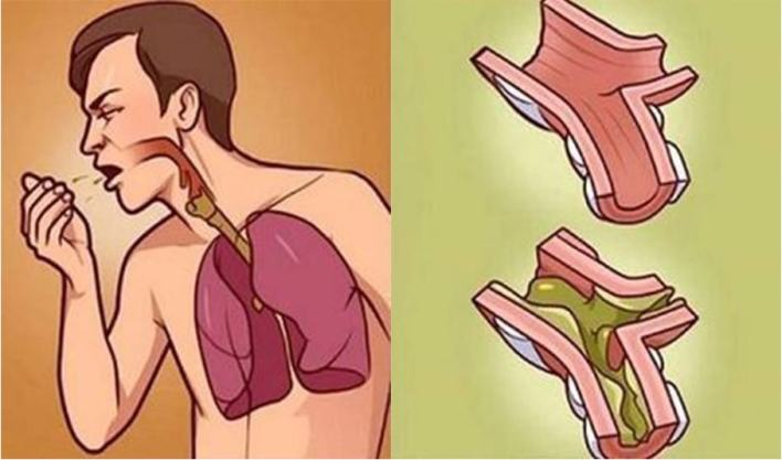 Get Rid of Phlegm and Mucus in Chest & Throat