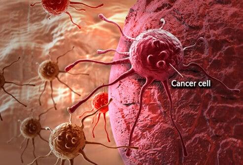 lions-mane-for-cancer