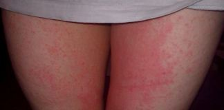 inner thigh rash