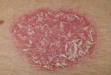 psoriasis belly button